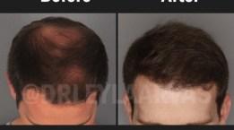 Saç Sorunlarınıza Çözüm Olarak Hangi Saç Ekimi Uygulamasını Seçmelisiniz?