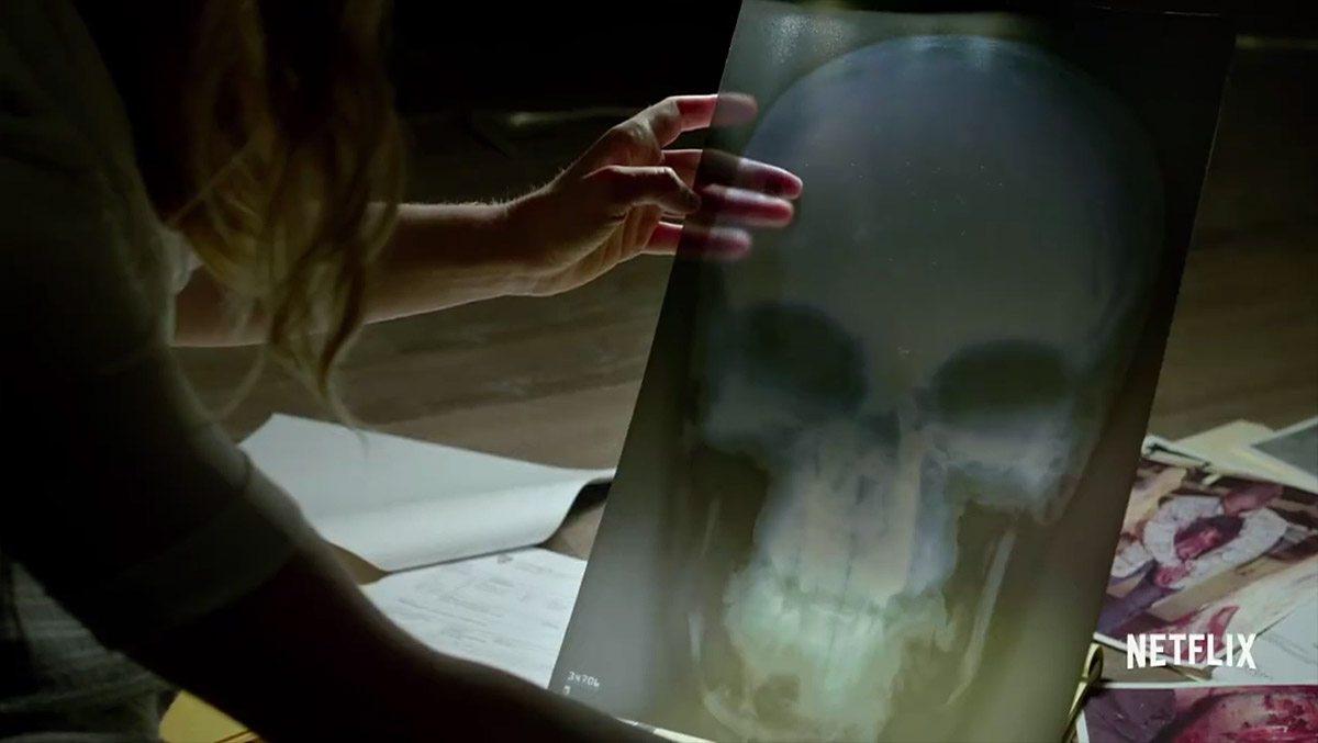 DD-S2-Skull