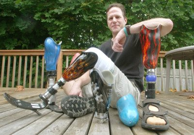 Dan Horkey with his collection of legs. Photo: Dan Horkey/ProstheticINK.com