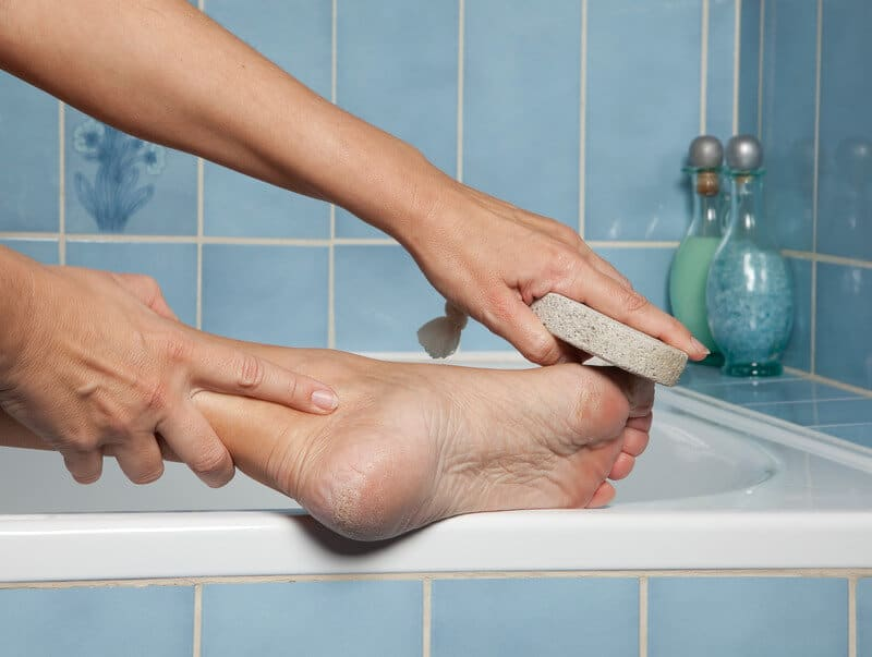how to remove calluses
