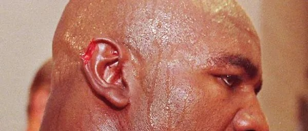 Evander Holyfield's ear after the boxing match