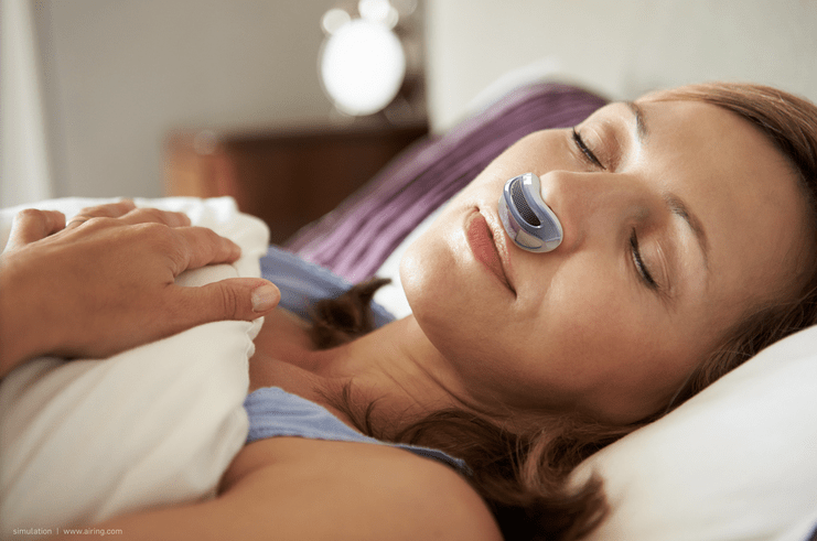 Airing -- A Tiny Device that Stops Snoring