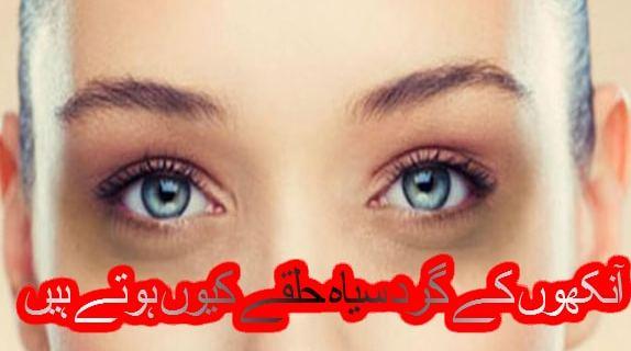 آنکھوں کے گرد سیاہ حلقے کیوں ہوتے ہیں