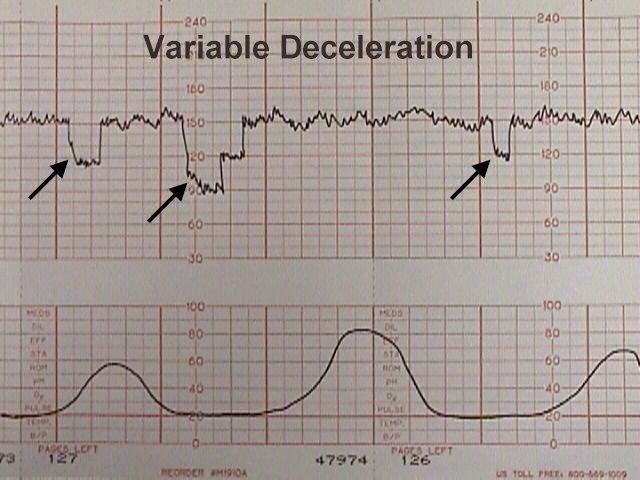 Image result for tocometer variable decelerations