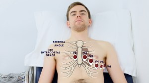 How to Record an ECG  OSCE Guide | Geeky Medics