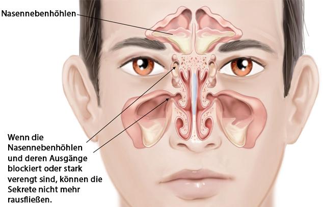 Verstopfung der Nasenhöhlenausgänge