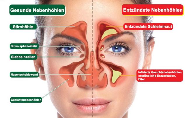 Gesunde und entzündete Nasennebenhöhlen