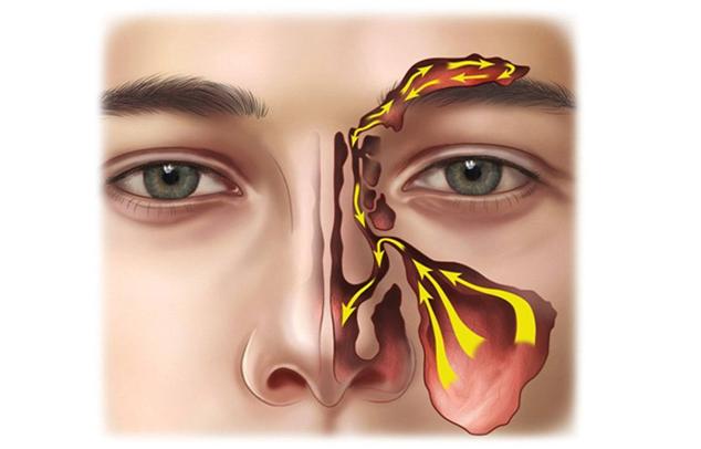 entstehung einer sinusitis