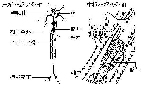 梅原裕一郎 休業 病気 急性散在性脳脊髄炎