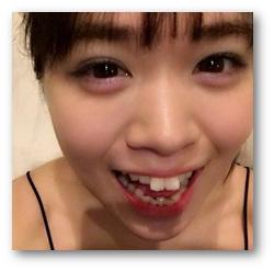 お世辞でも綺麗とは言えない歯並びですね。