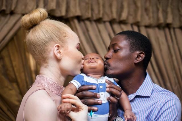 Albinism Awareness Day- Albino
