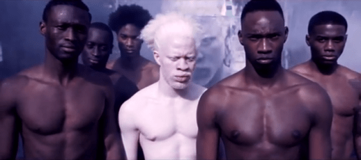 Albinism is not contagious