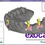 exocad-program-2-1.jpg