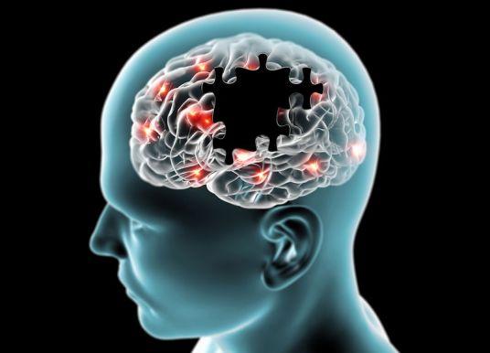 我是誰?我在哪?阿茲海默症神經元退化主因