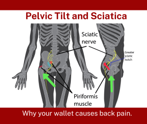 Anatomy photo of pelvis, where the piriformis muscle & sciatic nerve are located