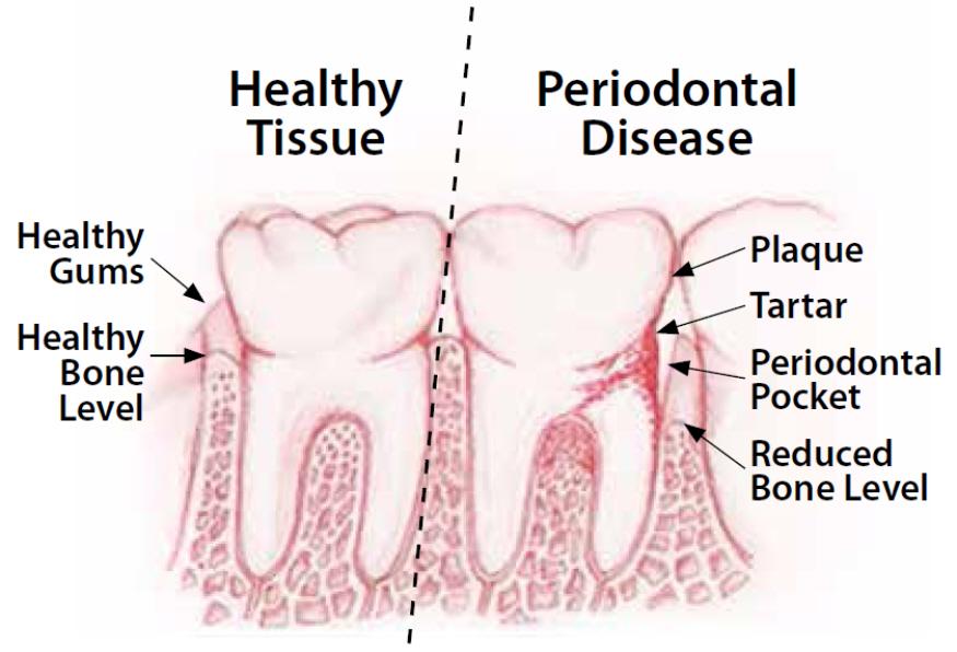 Generations Magazine - Gum Disease In Seniors - Image 01
