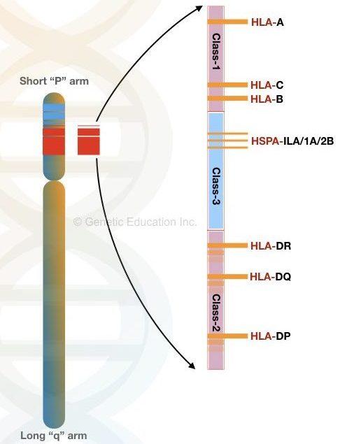 Chromosome 6p deletion