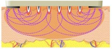 radiofrequenza frazionata