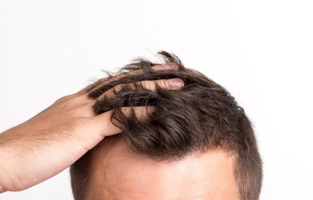 crecimiento del cabello.