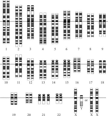 karyotypedowns