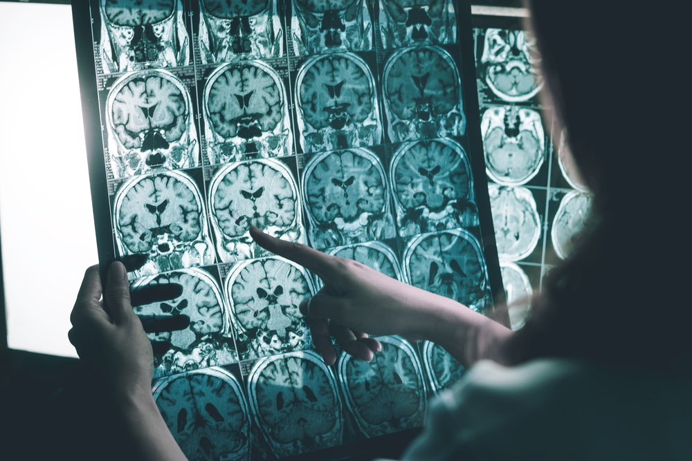 Early Alzheimer's Diagnosis is Key to Effective Treatment