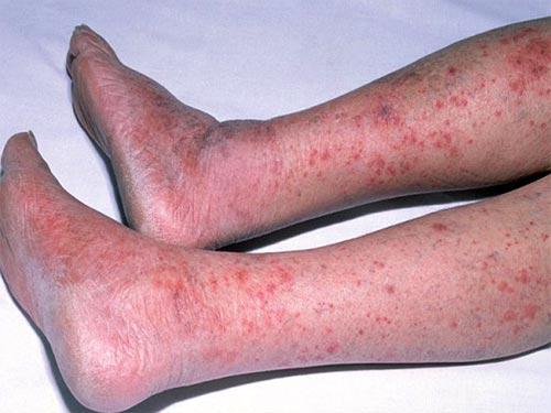 Сосудистые Заболевания Ног Фото