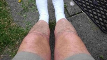 Geoff Nelder's short fat hairy legs
