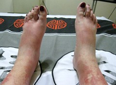 Gaelyn's swollen feet Pretoria South Africa