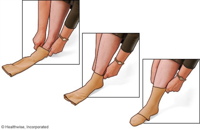 putting on compression stockings healthwise