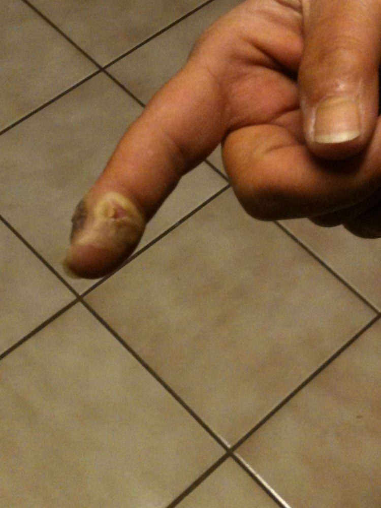 GERRI BOWEN and the still unfinished story of her finger, part two (4/6)