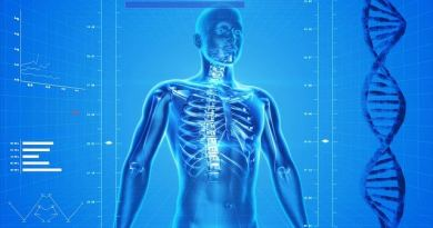 Osteoporose - eine Volkskrankheit