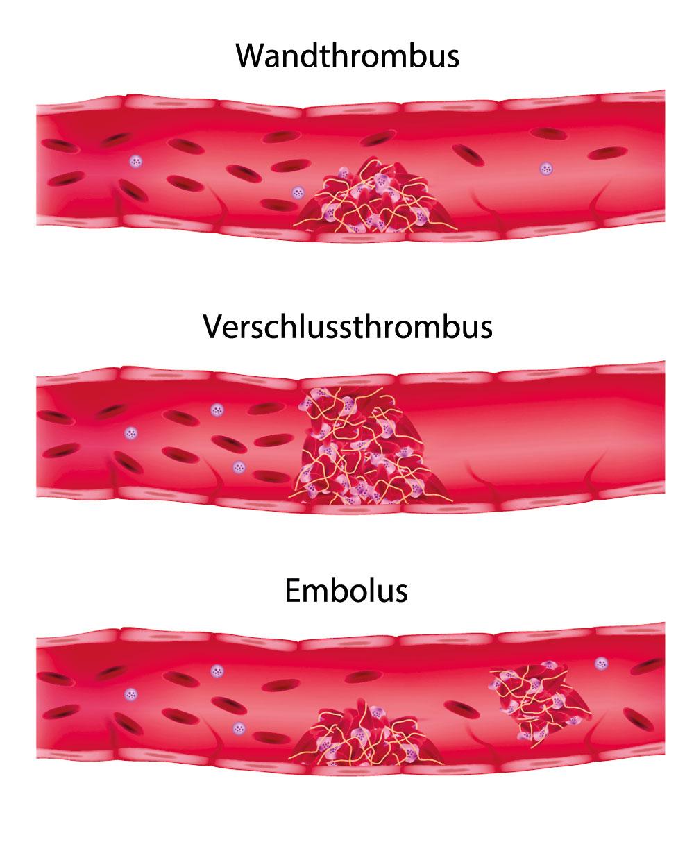 thrombose symptome die typische