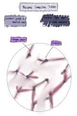Mucuous connective tissue