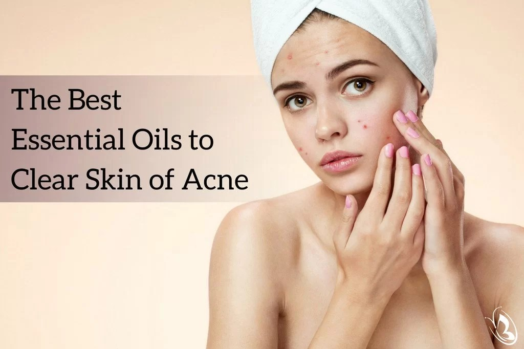 best essential oil for pimples