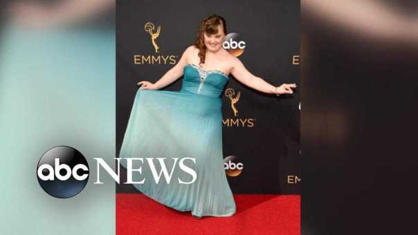 How Jamie Brewer, an actress with Down Syndrome, is inspiring others
