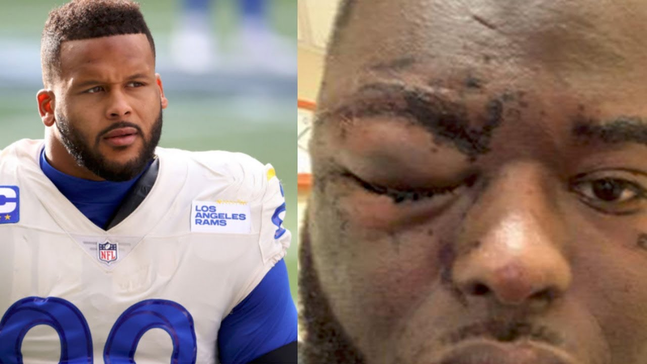 Aaron Donald Charged With Assault After Dude Says Donald JUMPED HIM After Accidental Bump