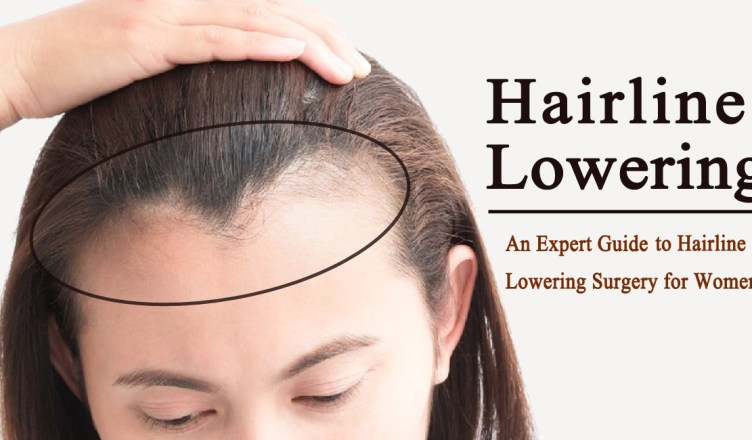 hairline lowering surgery- An Expert Guide to Hairline Lowering Surgery for Women