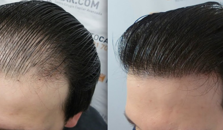 Hair FUE cost