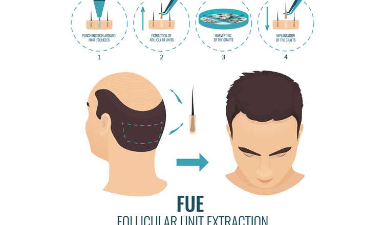 FUE Hair Transplant- Costs, Before and After Results