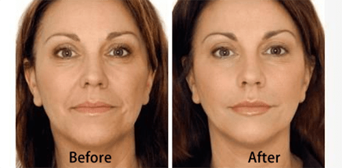 estetika skin laser specialists thermage facial.png