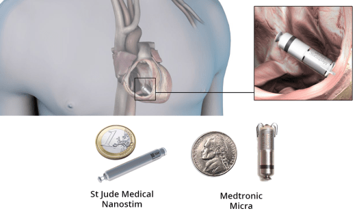 leadless-pacemakers 17 Amazing Healthcare Technology Advances of 2017