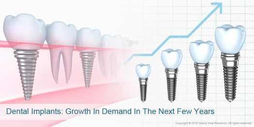 04_Dental-Implants-Growth-In-Demand-In-The-Next-Few-Years- Factors Impacting Dental Implants Market Growth