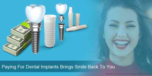 09_Paying-For-Dental-Implants-Brings-Smile-Back-To-You_02 Factors Impacting Dental Implants Market Growth