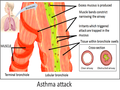 Asthma Asthma and cayenne pepper