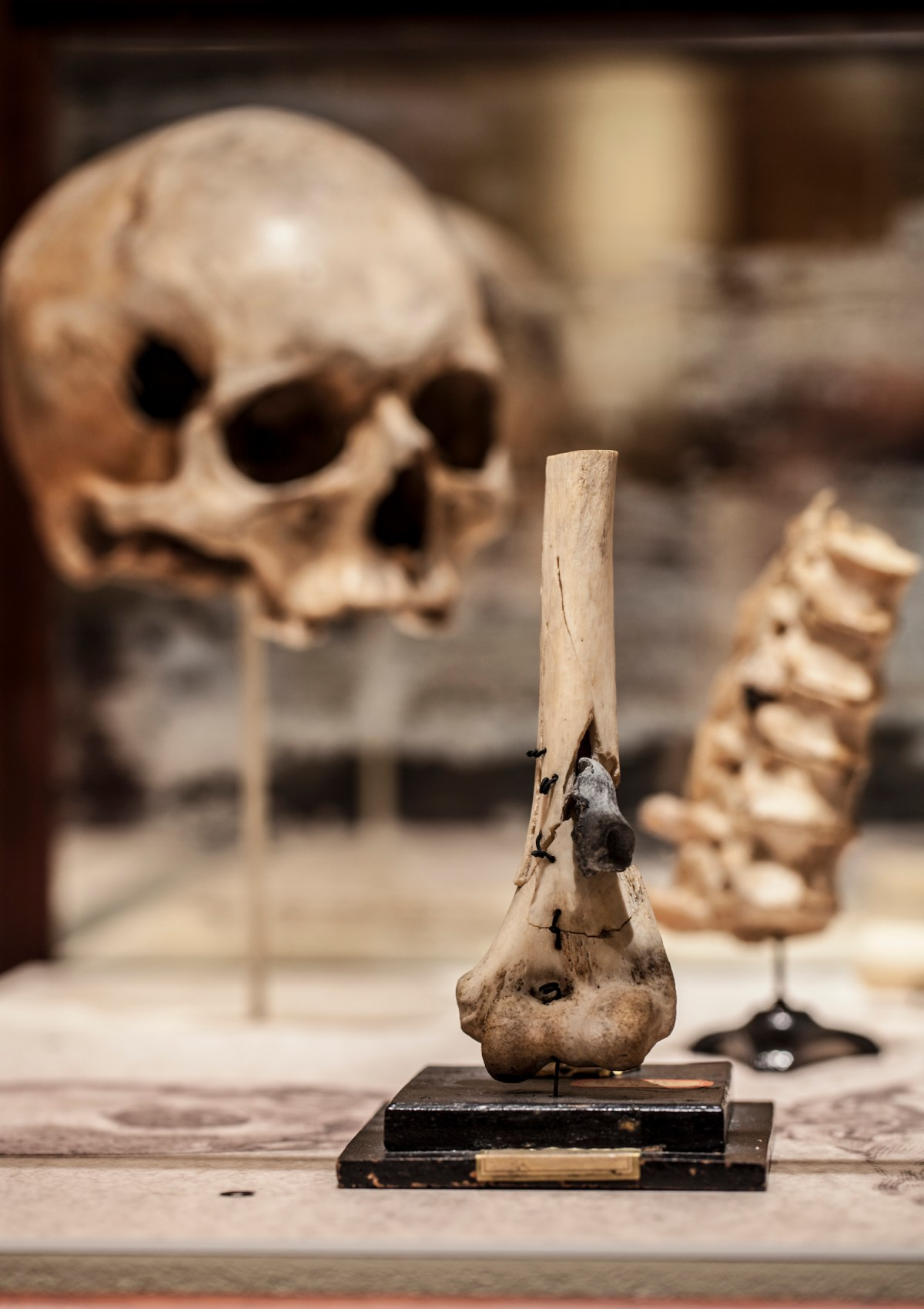 Disturbing and Informative: The Mütter Museum's Broken Bodies, Suffering Spirits Exhibit on Civil War Medicine
