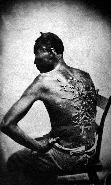 When discussing the institution of slavery from a wide angle lens, it is easy to forget it's human toll. Images like these remind us of the inhumanity of the practice of human bondage. Photo via Wikimedia Commons.