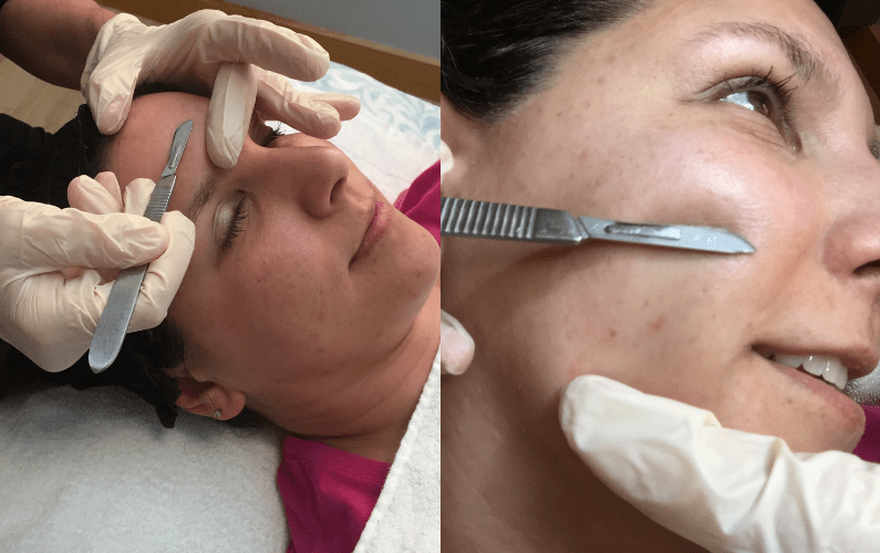 Dermaplaning - What to Expect & Can I Do it at Home? - Get