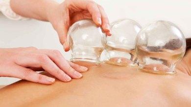 صورة فوائد الحجامة في علاج إرتفاع ضغط الدم