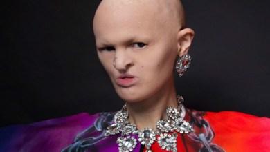 """صورة عارضة أزياء """"فريدة"""" تقلب موازين عالم الجمال"""