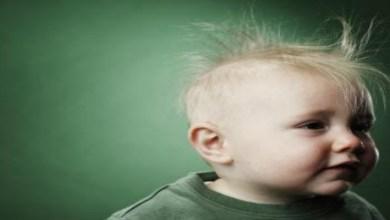 صورة تعرفي على أسباب تساقط شعر طفلك